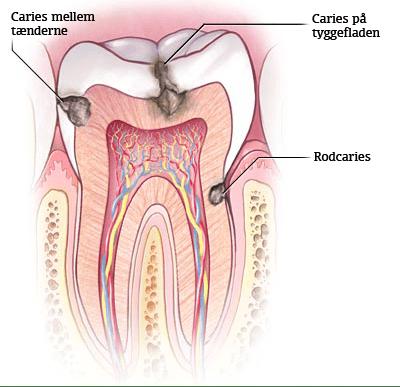 hul i tand
