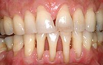 tandkød trækker sig tilbage