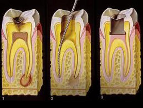 Rodbehandlet tand gør ondt