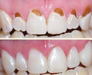 hul i tand symptomer