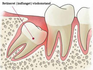 blødning efter tandudtrækning
